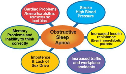 SleepApnea_chart